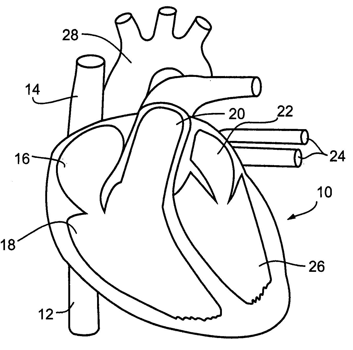 Circulatory System Coloring Pages Page 1 - Coloring Home
