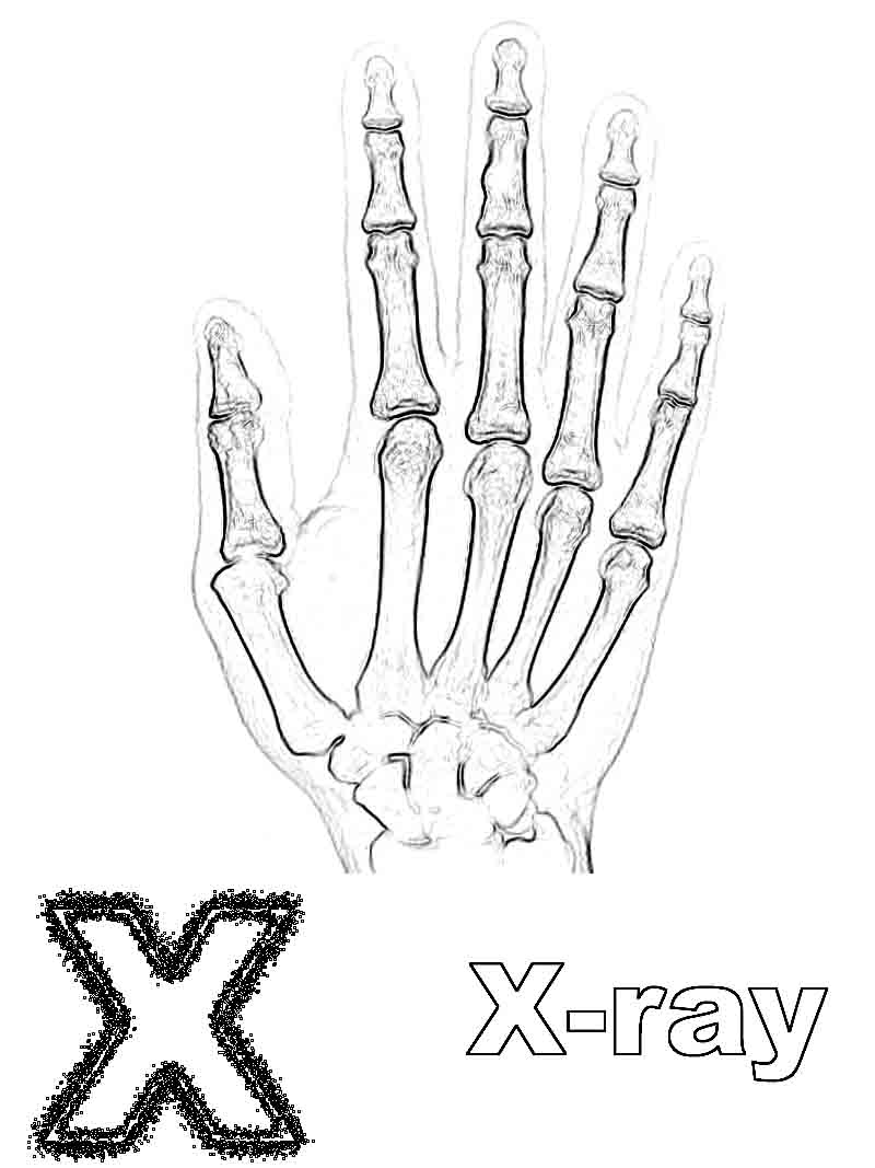 X ray coloring sheets - X Is For X Ray Coloring Page